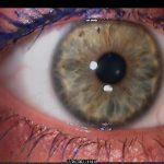 עין כחול אפור