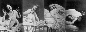 תיעוד מצולם של תופעת ההיסטריה בקרב נשים