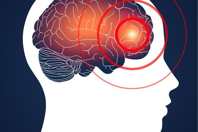 מיגרנה היא הרבה יותר מכאב ראש (צילום:Shutterstock LightAndShare)