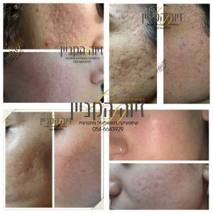 שילוב טכנולוגיית מזותרפיה וחומרים פעילים הביאו לשיפור דרמטיבמראה עור הפנים.
