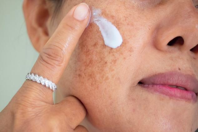 בעזרת התכשירים הנכונים, אפשר לשפר את מצב כתמי העור (צילום: שאטרסטוק / DUANGJAN J)