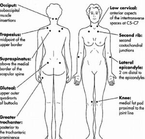 נקודות הכאב בפיברומיאלגיה