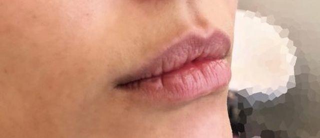 ליבי - שפתיים 1