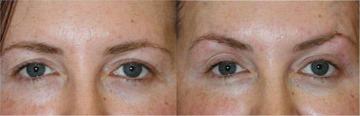 resized_תמונה לפני ואחרי הרמת עיינים קרדיט צילום יחצ