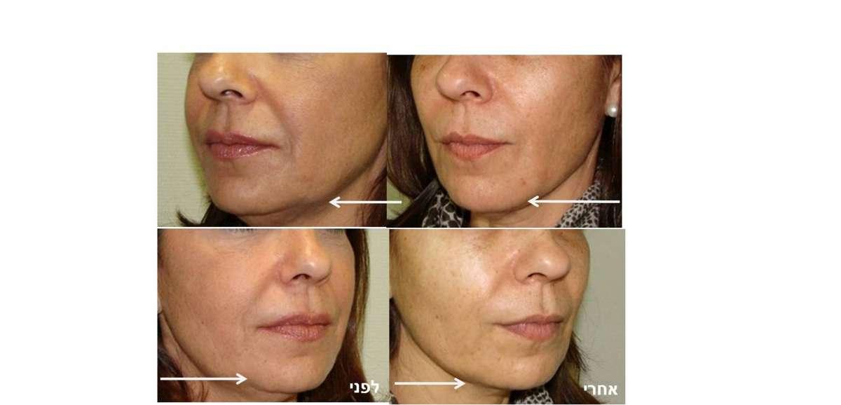 resized_תמונה לפני ואחרי של טיפול קו הלסת חוטים קרדיט צילום יחצ