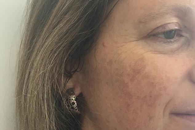 כתמי העור מקבלים את פני מדי בוקר במראה (אלבום פרטי)